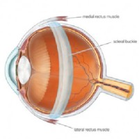 scleral-buckle-300x300